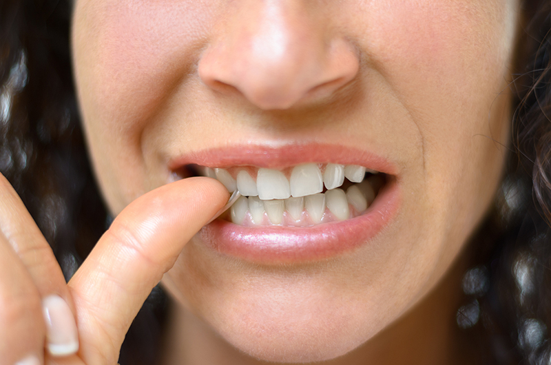 What You Should Know About Discoloration of Teeth